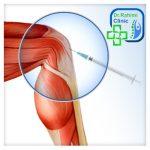 درمان بدون جراحی درد زانو