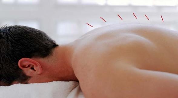 درمانی بی خوابی با طب سوزنی