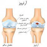 درمان آرتروز در تبریز ، بهترین دکتر درمان آرتروز در تبریز ، دکتر رحیمی